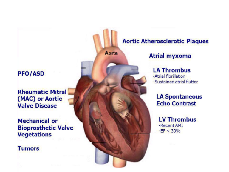 Cardiac   Source   of   Embolism